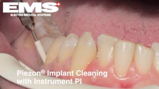 Implant cleaning with Air Flow and Piezon-APOSTOLIDES DENTAL