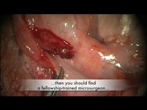 Penectomy Removal Photos http://unladylikebehavior.com/2012/09/16/penectomy-and-orchiectomy/