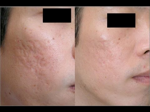 How to Clear Acne (Treating Acne Pits)