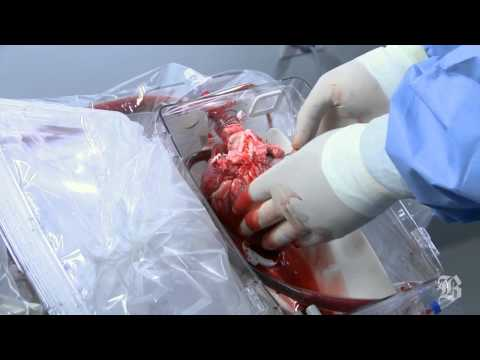 Device that keeps a donor heart beating