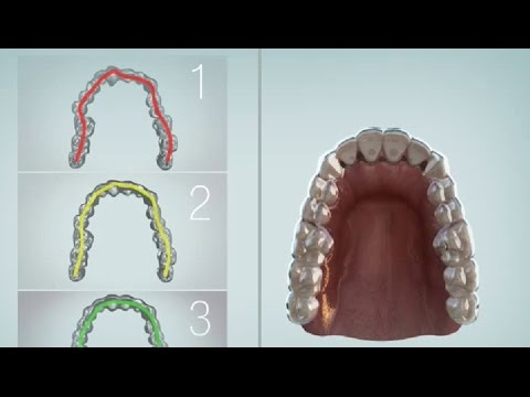 ClearPath Clear Aligners (USFDA APPROVED)