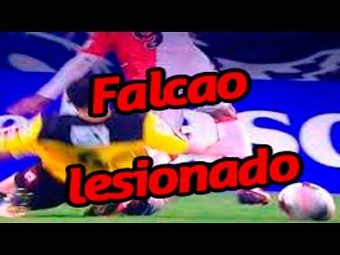 ✔ radamel falcao esta lesionado no va a brasil 2014