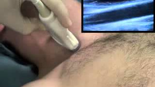 Ultrasaund Guided Internal jugular Vein Cannulation