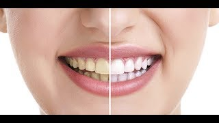 দাত হবে মুক্তার মত সাদা How to Whiten Your Teeth