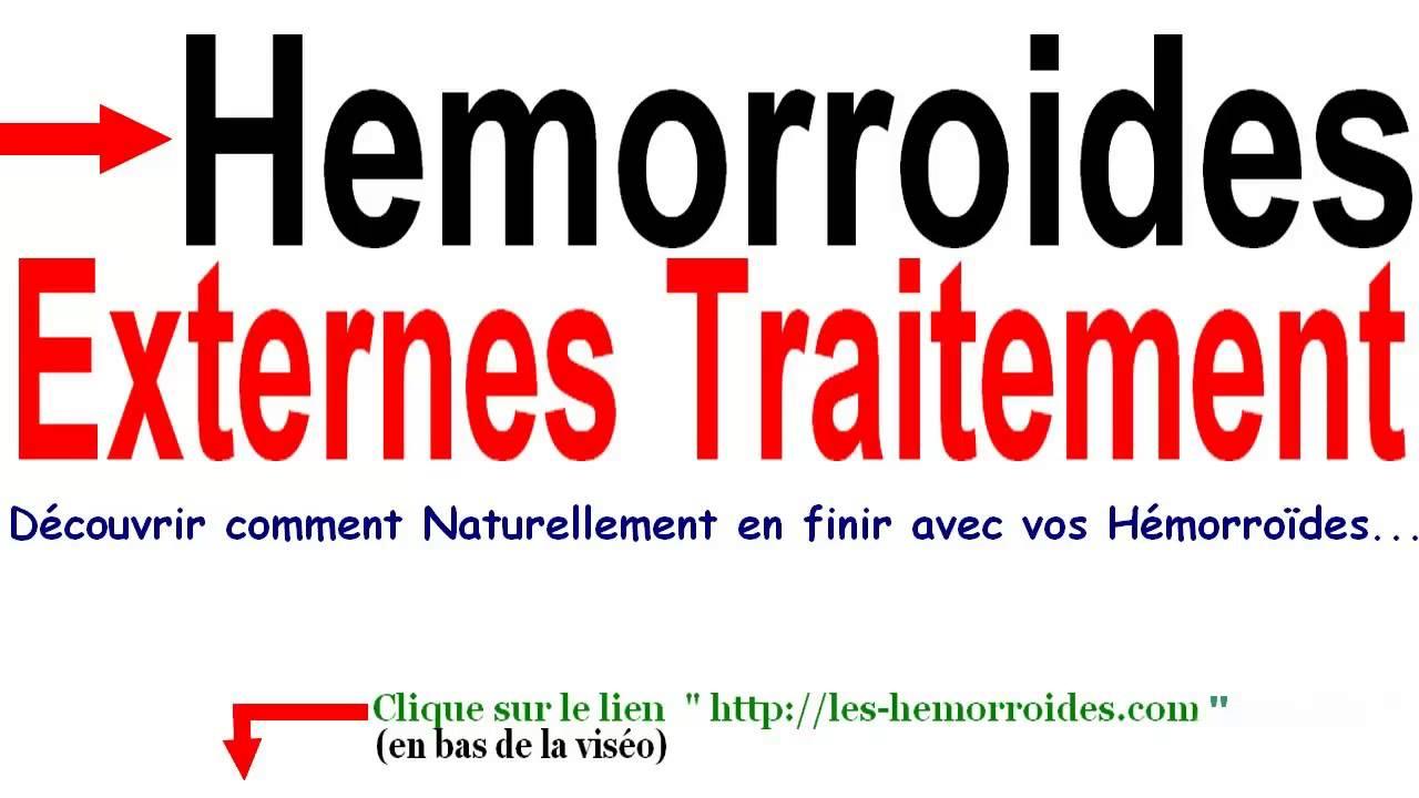 Hemorroides Externes Traitement - YouTube