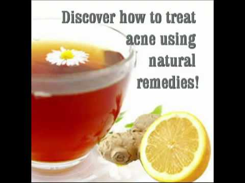 Remedies for acne Tips To Get Rid Of Blackheads And Whitehea