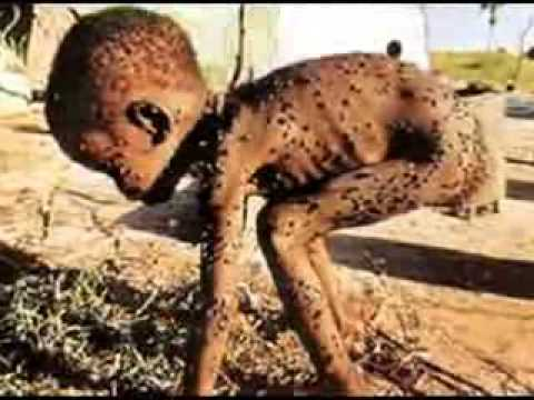 Hungry children in africa