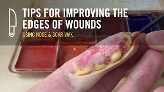 Improving your wound edges