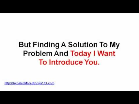 acne home treatment - exposed acne treatment reviews - best scar treatment
