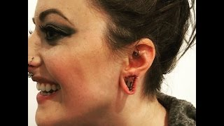 All About My Lobe Scalpelling