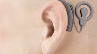 Cochlear Implant Surgery - Bionic Ear