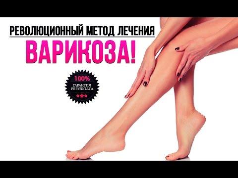 Как лечить варикоз ног в домашних условиях