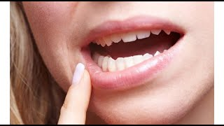 6 علامات تدل على إصابتك بـ«سرطان الفم»
