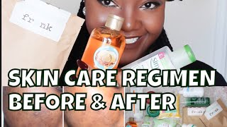 ACNE SKIN CARE REGIMEN | ACNE.ORG| FRANKS BODY SCRUB REVIEW | BEFORE AND AFTER