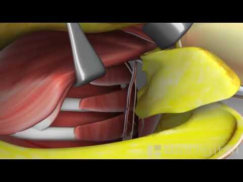 Mastectomia - Animação em 3D