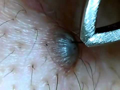 ほくろの毛を引っこ抜く!part3 Hair of a mole!