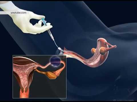 est-svoyu-spermu