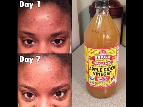 Apple Cider Vinegar Before And After Acne Apple Cider Vinegar Face