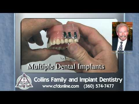 Partial dentures vs dental implants. by Collins Family and Implant Dentistry. Vancouver. WA