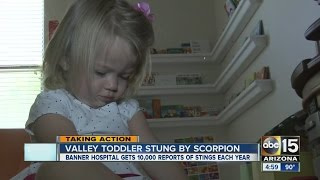 Valley toddler stung by scorpion: Symptoms to be aware of