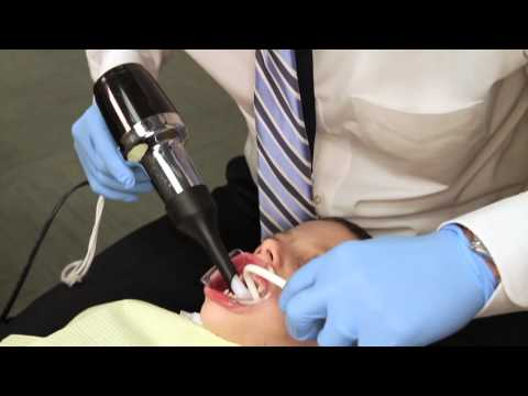 Rapid Palatal Expander Procedure Explained