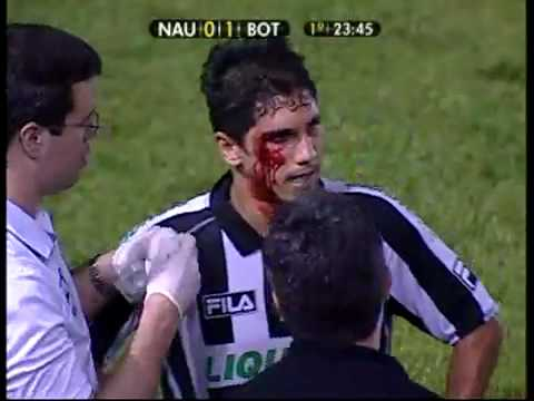 Jogador violento do Náutico pega seis jogos por cotovelada.  que partiu o rosto do adversário