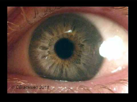 Eye Works 1: Focusing: Cornea, Iris and Lens