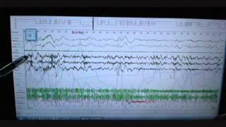 Sleep Study Scoring on Person with Severe Sleep Apnea and snoring. Polysomnograph