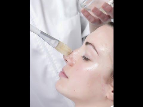 Glycolic Acid [DermTV.com Epi #455]