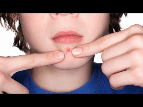 How to Prevent Clogged Pores   Acne Treatment