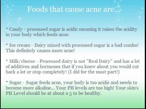 Foods That Cause Acne?