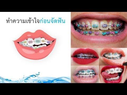 จัดฟัน ขั้นตอนก่อนจัดฟัน