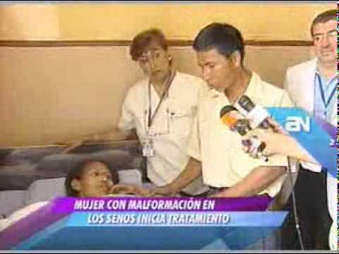 Julia María Manihuari padece de una crecimiento anormal de los senos Video