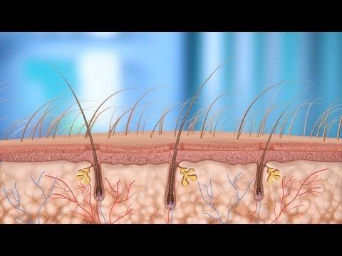 Acne - Oral Antibiotics in Acne Treatment