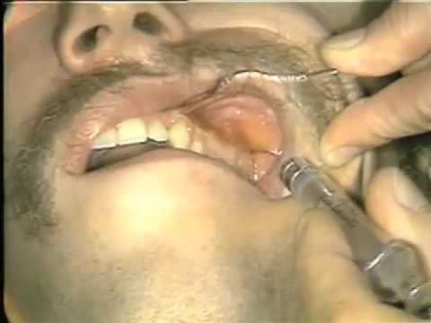 Local Anesthetic Injection Techniques
