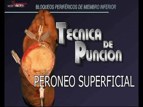 BLOQUEOS DISTALES DEL M. INFERIOR; TÉCNICA DE PUNCIÓN.