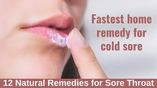 fastest Home Remedy For Cold Sore  12 Natural Remedies For Sore Throat