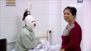(VTC14)_Cô gái bị bỏng toàn bộ khuôn mặt vì nổ bóng bay