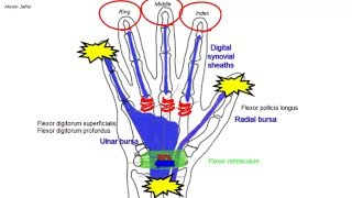 Synovial flexor sheaths in the palm