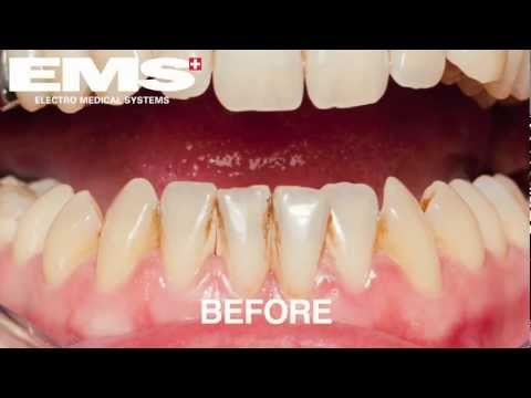 NHS Dentists London EMS Airflow (TM)Cleaning