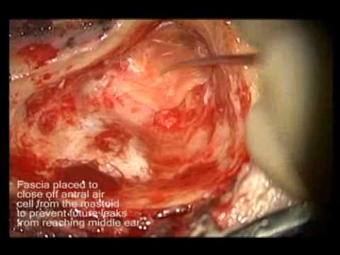Spontaneous posterior fossa cerebrospinal fluid leakage repair.flv