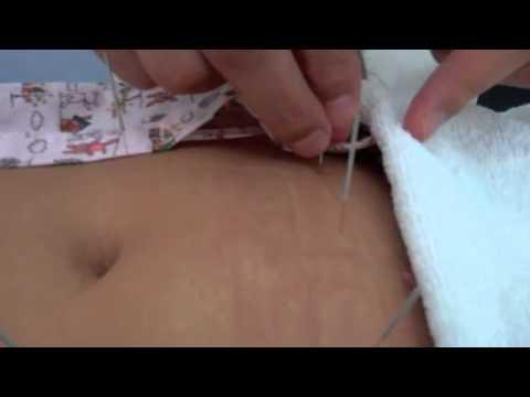 Acupuncture for PCOS, Uterine Fibroids & Infertility