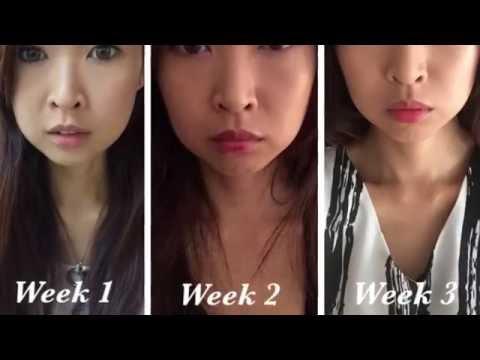 Ultraformer III HIFU Facial Treatment Trial