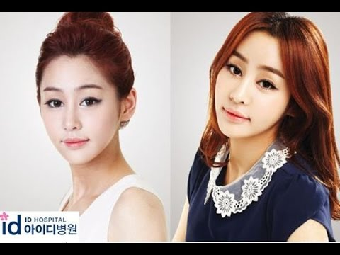 plastic surgery in korea review