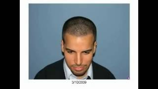 FUE Hair Transplant - Excellent Result