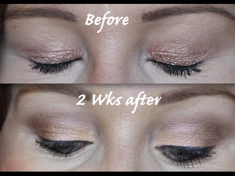 How to get rid of hooded eyes without surgery! Part 2 - Diary of Plexr Treatment