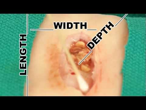 Wound Measurement- Understand Wound Care