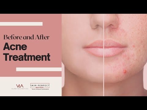 Acne Scars Removal - Before and After | Skin Perfect Medical Spa