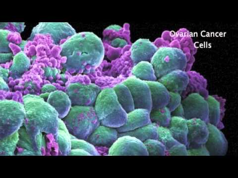DC Vaccine Therapy for Ovarian Cancer:The Music Video