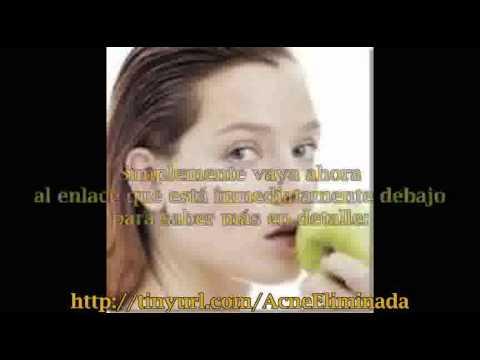 Remedios caseros para combatir el acne.